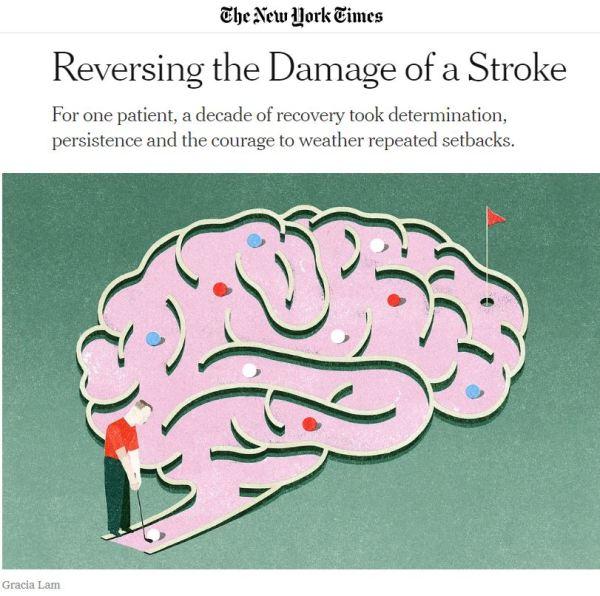 Reversing Damage of a Stroke NYT