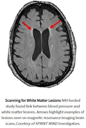 Blood Pressure link to white matter lesions