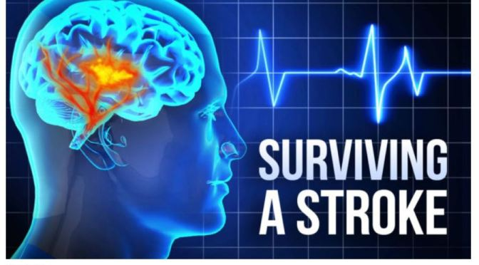 "Health Studies: Silent Or ""Covert"" Strokes Are Post-Surgery Risks, Increasing Risk Of Cognitive Decline"