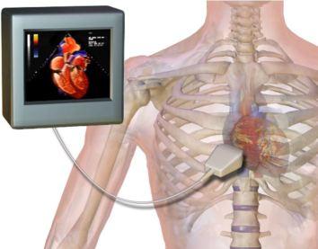 Echocardiogram wikipedia