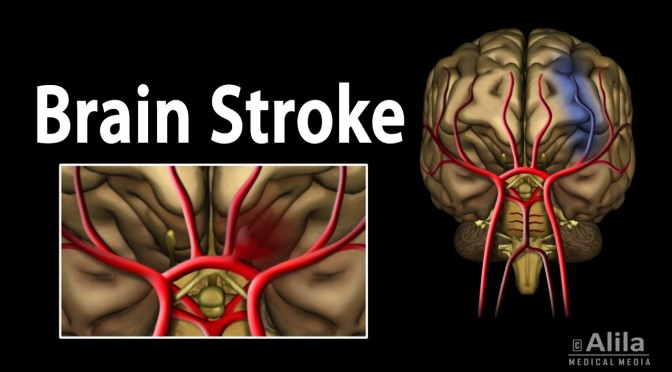 "Medical Perspectives: ""Stroke – The Doctor As Patient"" (The Lancet)"
