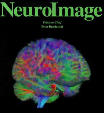 NeuroImage Journal