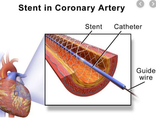 Stent in Coronary Artery