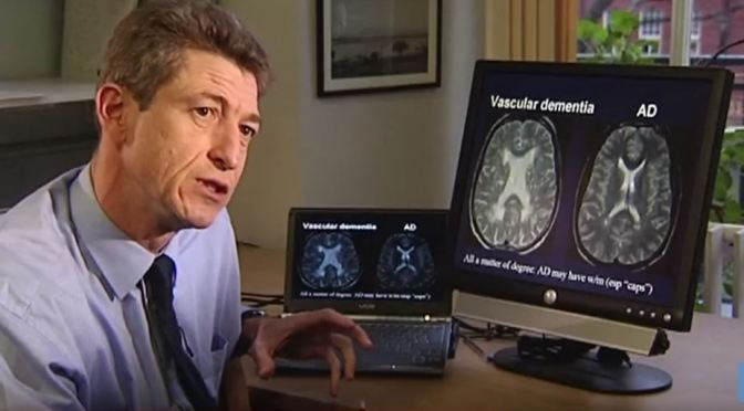 "Health: ""Key Techniques in Diagnosing Dementia"""