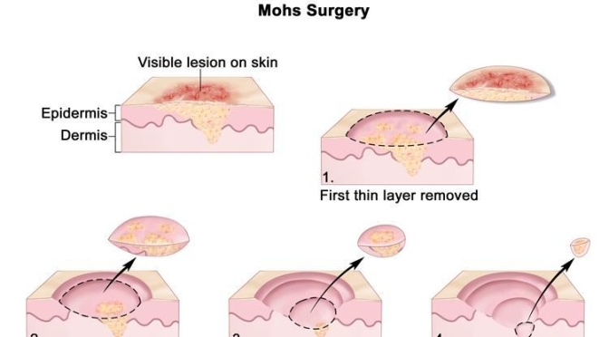 "Medical: ""Mohs Micrographic Surgery"" For Skin Cancer Explained"