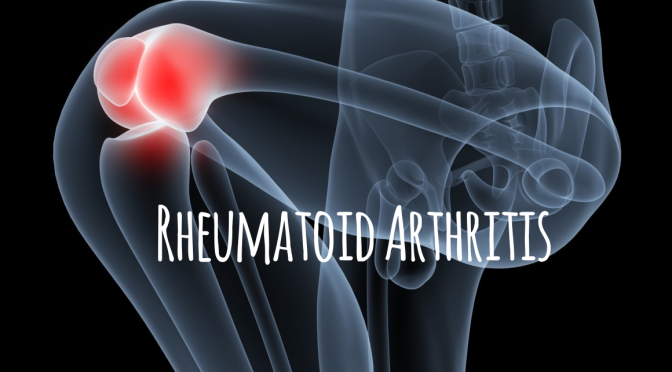 Research: Scientists Find Protein To Regulate Immune Attacks, Reduce Rheumatoid Arthritis