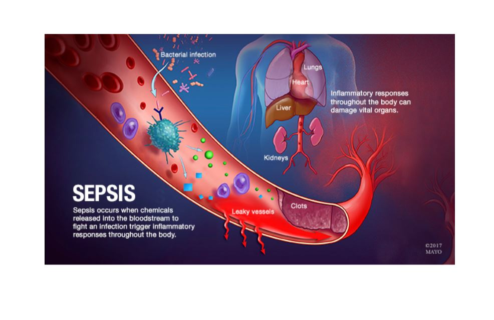 Mayo Clinic Health Video Dangers Of Sepsis Now Require Response Teams In Intensive Care Units Boomers Daily