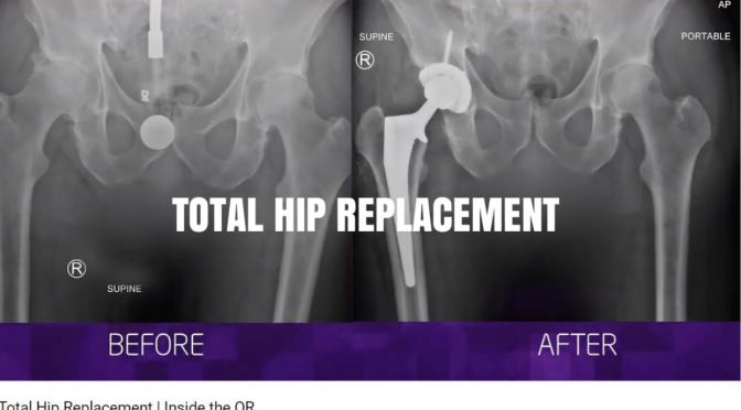 "Medical Procedures: Inside Look At ""Total Hip Replacement"" Surgery"