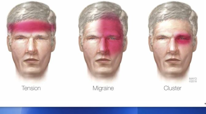 "Health Talk: ""Treating Headaches,  Migraines And Cluster"" (Mayo Clinic)"