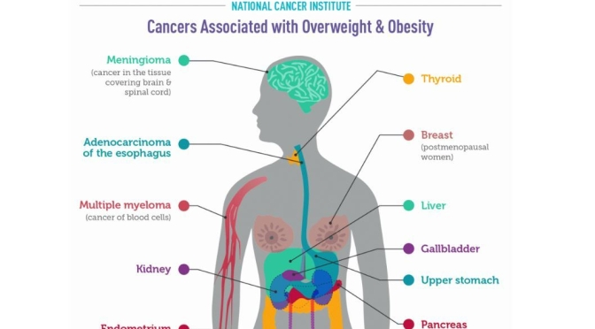 "Health Infographics: ""Cancers Associated With Overweight & Obesity"""