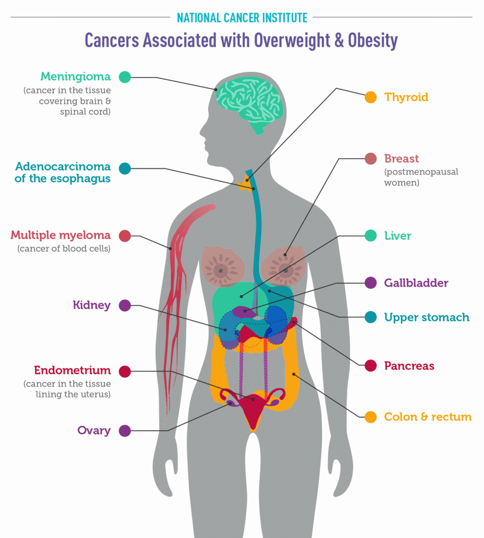 Cancers Assoicated with Overweight and Obesity - National Cancer Institute - Infographic