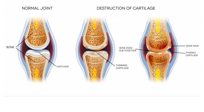 "Stanford: Researchers Find Way To ""Regrow"" New Cartilage In Joints"