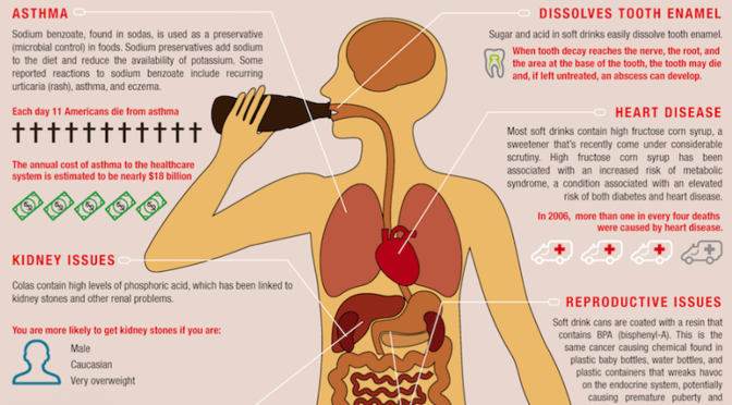 Infographics: Unhealthy Impact Of Drinking Soda