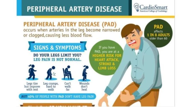 Health Infographics: 'Peripheral Artery Disease'