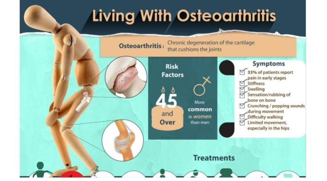 Studies: Osteoarthritis Patients Using Exercise Therapy Have Less Pain, Cut Opioid & Analgesic Use