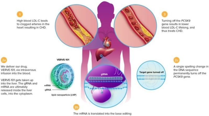 Heart Disease: New Gene-Editing Technology To Lower 'Bad Cholesterol'