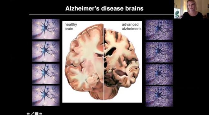 Alzheimer's Disease: 'How It Starts & Progresses'