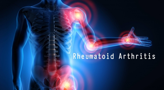 Medicine:  'AI' Can Predict Rheumatoid Arthritis