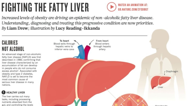 Infographic: Fighting Fatty Liver Disease