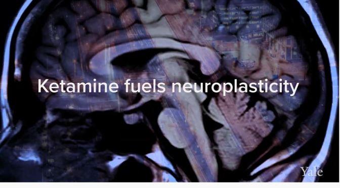Depression: How Ketamine Can Help (Yale Medicine)