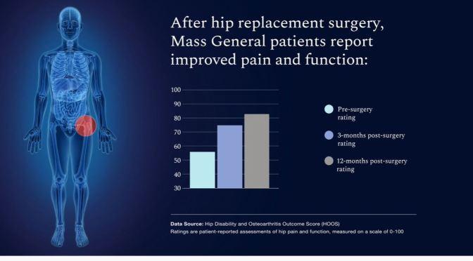 Health: Hip Replacement Surgery Success Rates
