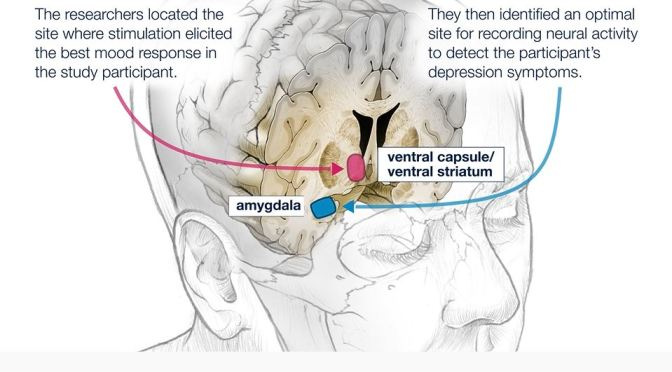 Treating Depression: Deep Brain Stimulation (UCSF)